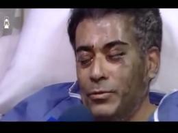 رئیس بیمارستان ضیاییان تهران مورد اسیدپاشی قرار گرفت