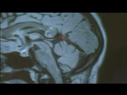 خارج کردن جنین از مغز یک زن !