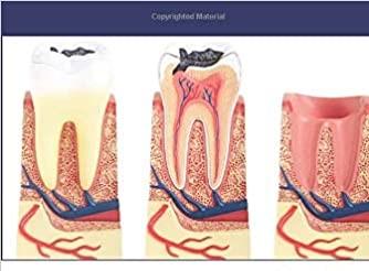 اختراع کم هزینهترین، ایمنترین و بهترین روش ترمیم پوسیدگی  دندان(وایتال پالپ تراپی)
