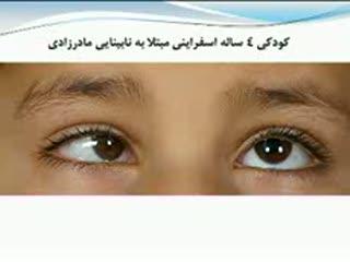 کشف ژن نابینایی