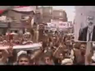 روزنه های امید در یمن
